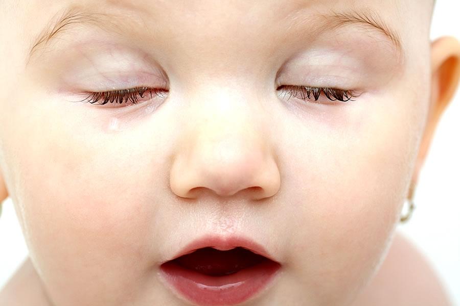 کودک پلک زدن متوالی