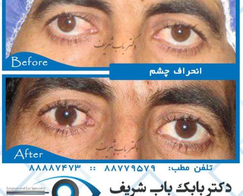 عکسهای جراحی انحراف چشم