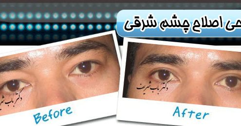 جراحی اصلاح چشم شرقی