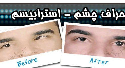 عمل انحراف چشم (استرابیسم)