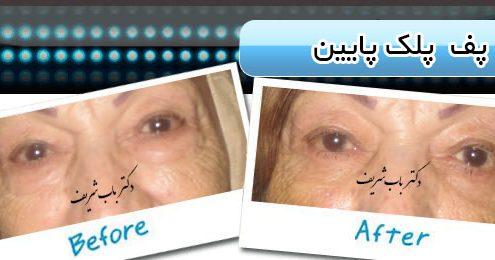 جراحی پلک پایین و پف زیر چشم