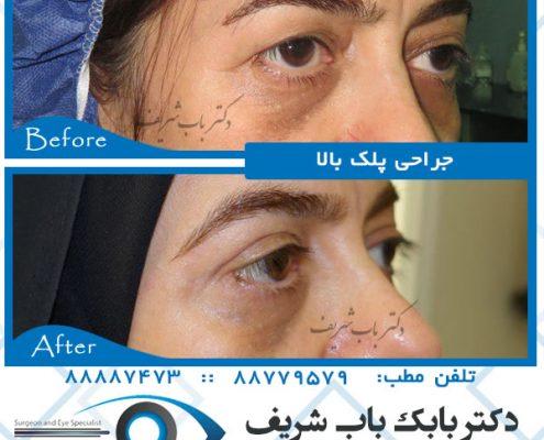 عکسهای عمل جراحی پف پلک بالا